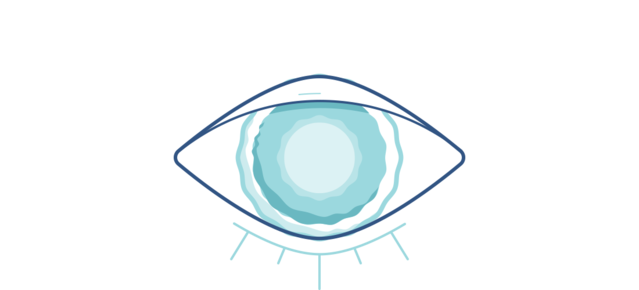 Illustration of a cloudy eye
