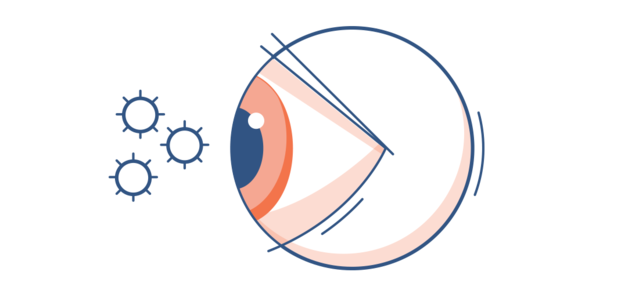 Illustration of a red eye with pollen particles in the surround air