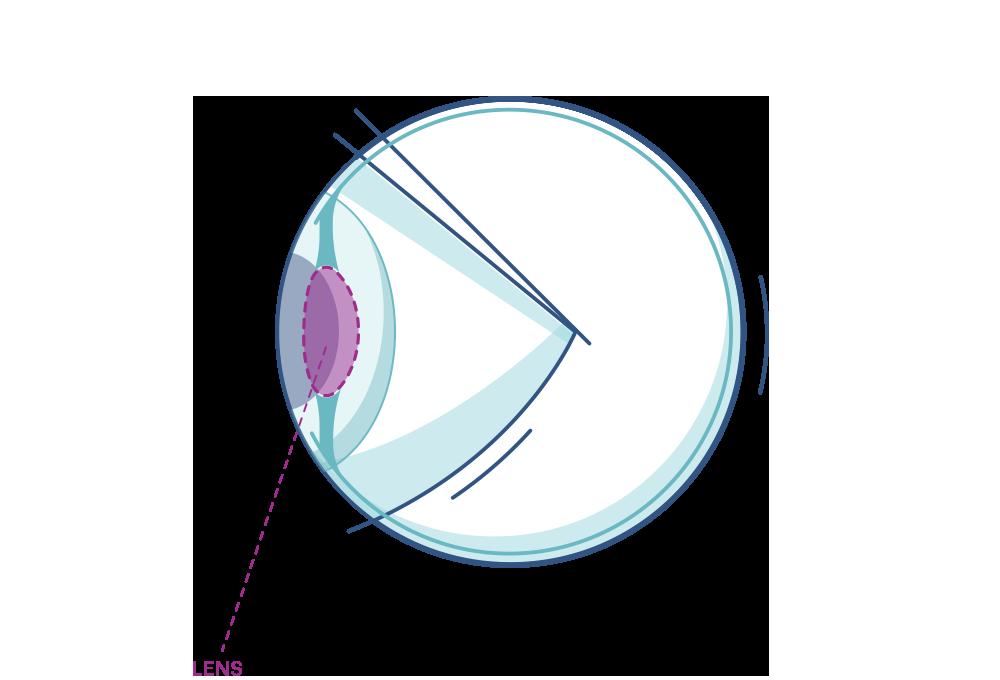 Illustration of any eye highlighting the lens