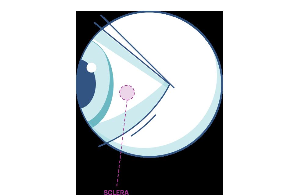 Illustration of any eye highlighting the Sclera