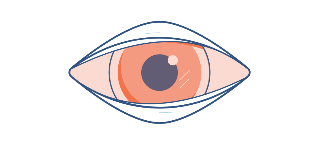 Illustration of a sore, red eye