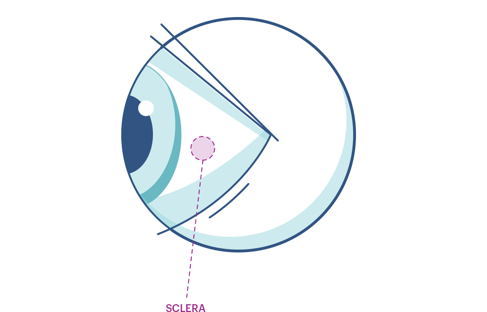 Illustration of any eye highlighting the Sclera